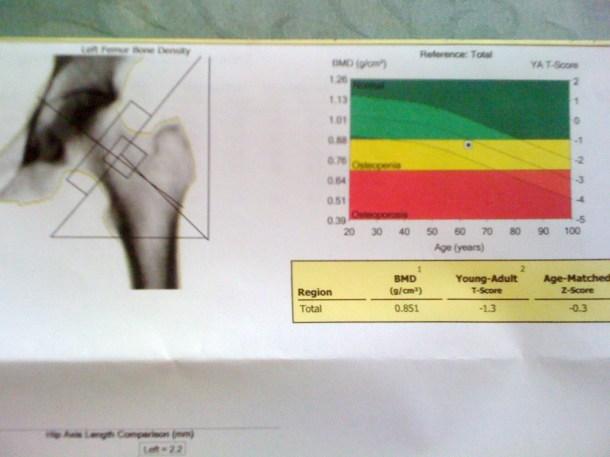 bone density scan result 001